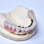 dentallabor-millwood-produkte-01