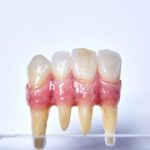 dentallabor-millwood-produkte-21