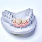 dentallabor-millwood-produkte-23