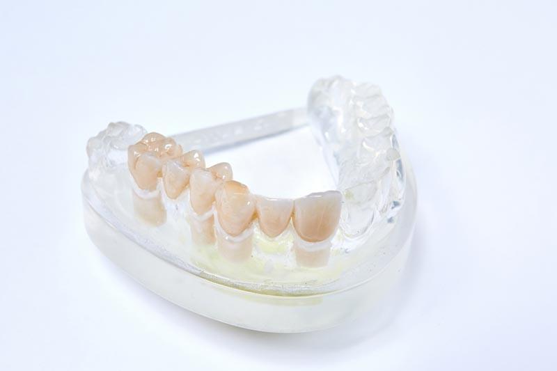 dentallabor-millwood-produkte-31