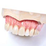 dentallabor-millwood-produkte-35