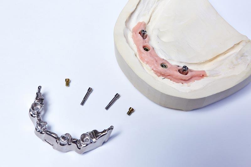 dentallabor-millwood-produkte-59